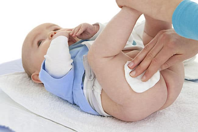 skin care tips for baby